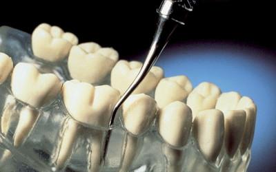 Periodontologia-2