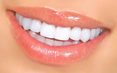 branqueamento-dentario2